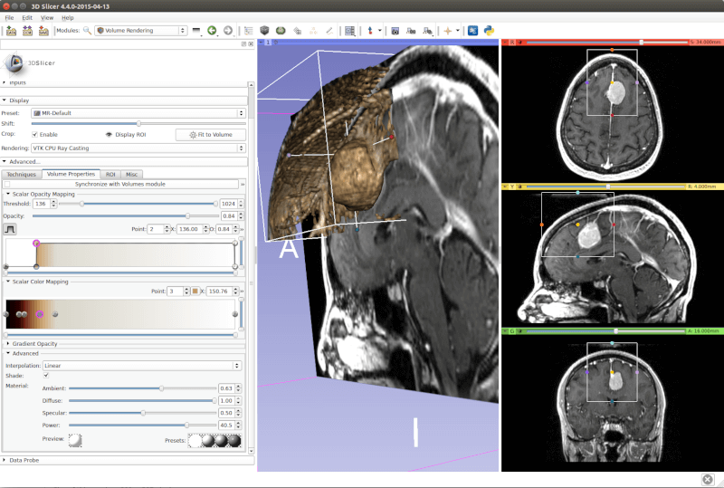3D Slicer - Image Analysis and Scientific Visualization