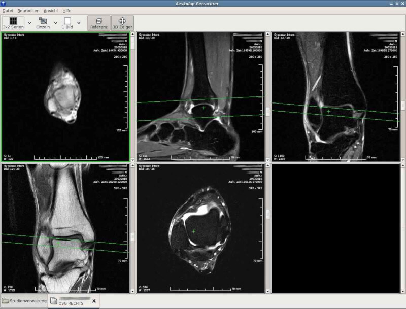 Aeskulap - DICOM Image Viewer