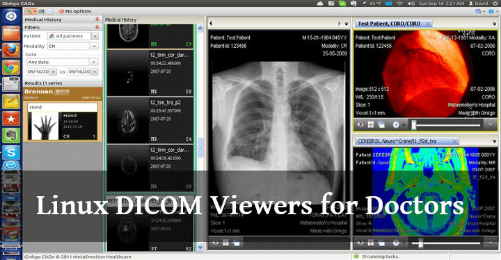 Linux DICOM Viewers for Doctors