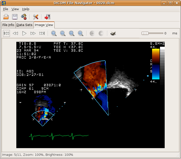 Top 11 Free Linux DICOM Viewers for Doctors